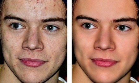 before-after-harry-styles-before-and-after-photoshop-by-ThalesRC-b_1-450x270